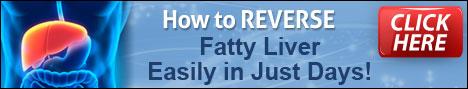fatty-liver-remedy