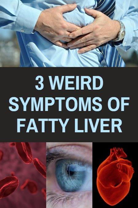 3 Weird symptoms of fatty liver. If you experience any of these, you may be carrying excess fat in your liver.